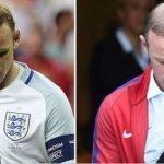 Rooney il mistero sul trapianto di capelli